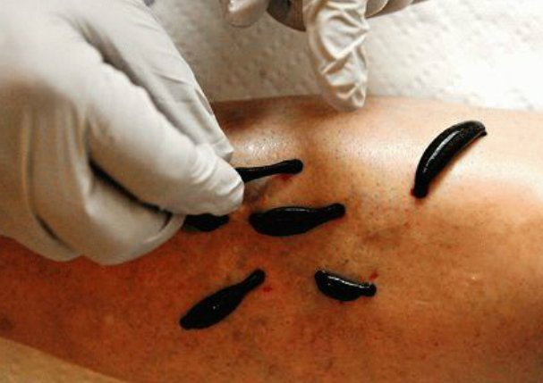 Лечение пиявками суставов и варикоза перелом суставного отростка нижней челюсти картинка